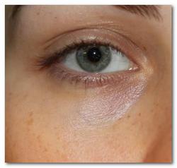 темные круги под глазами симптомы